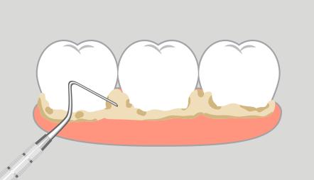 歯にたまった歯石を除去します。