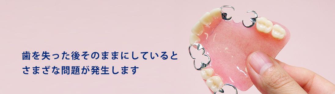 歯を失った後そのままにしているとさまざな問題が発生します